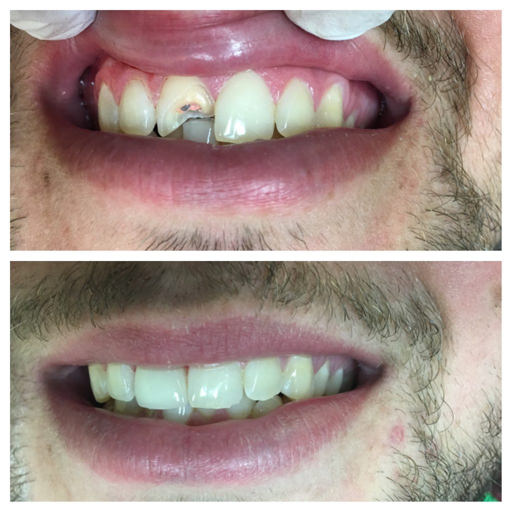 Broken Front Tooth Before And After