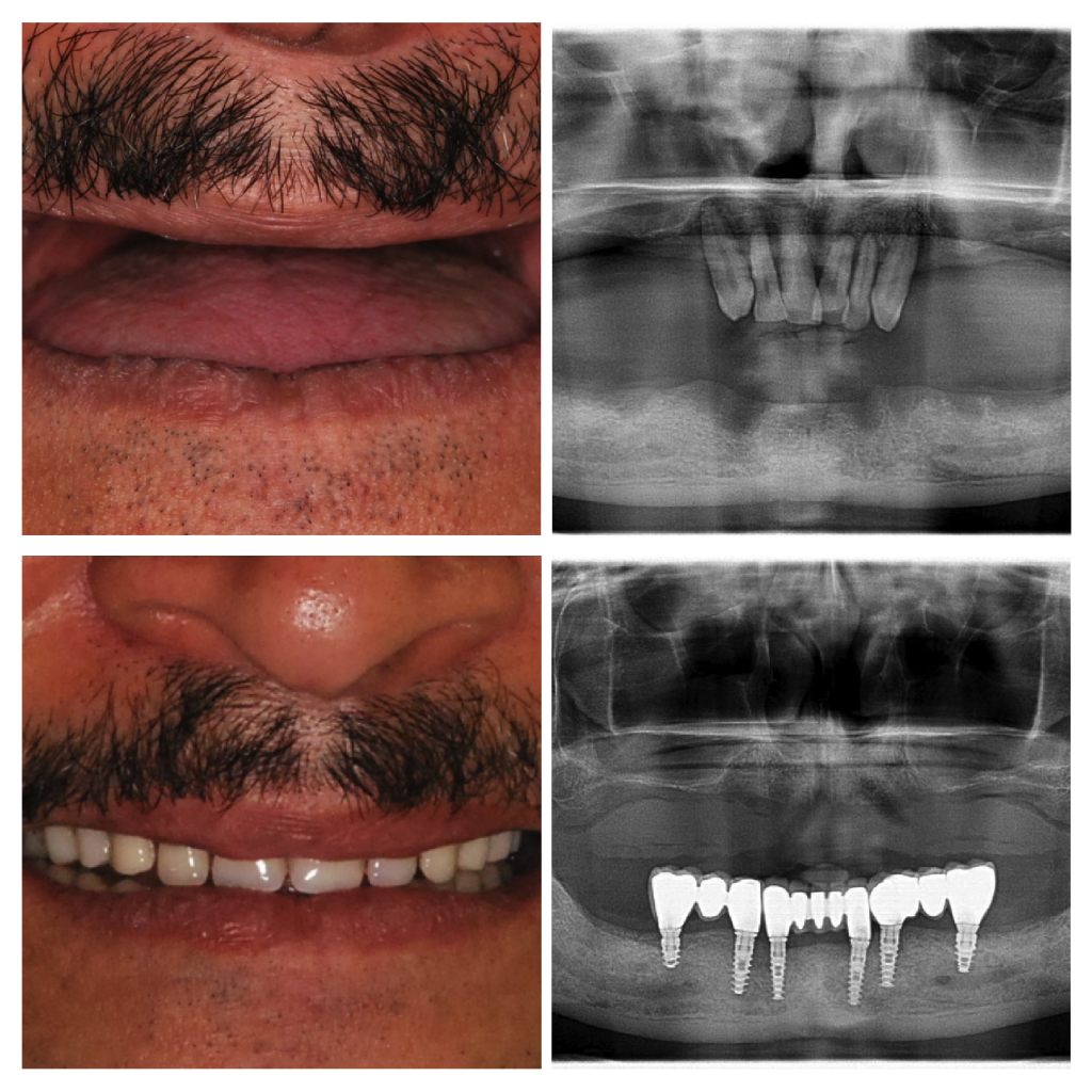 Fixed Implant Supported Teeth 01