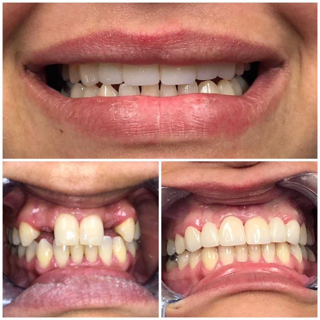 Misiing Front Teeth Before And After