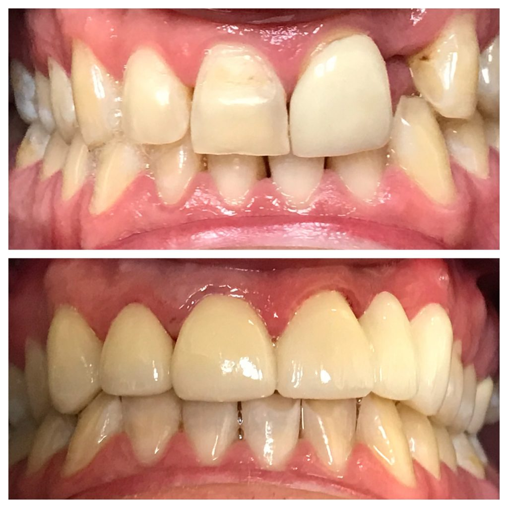 Missing Front Tooth Before After