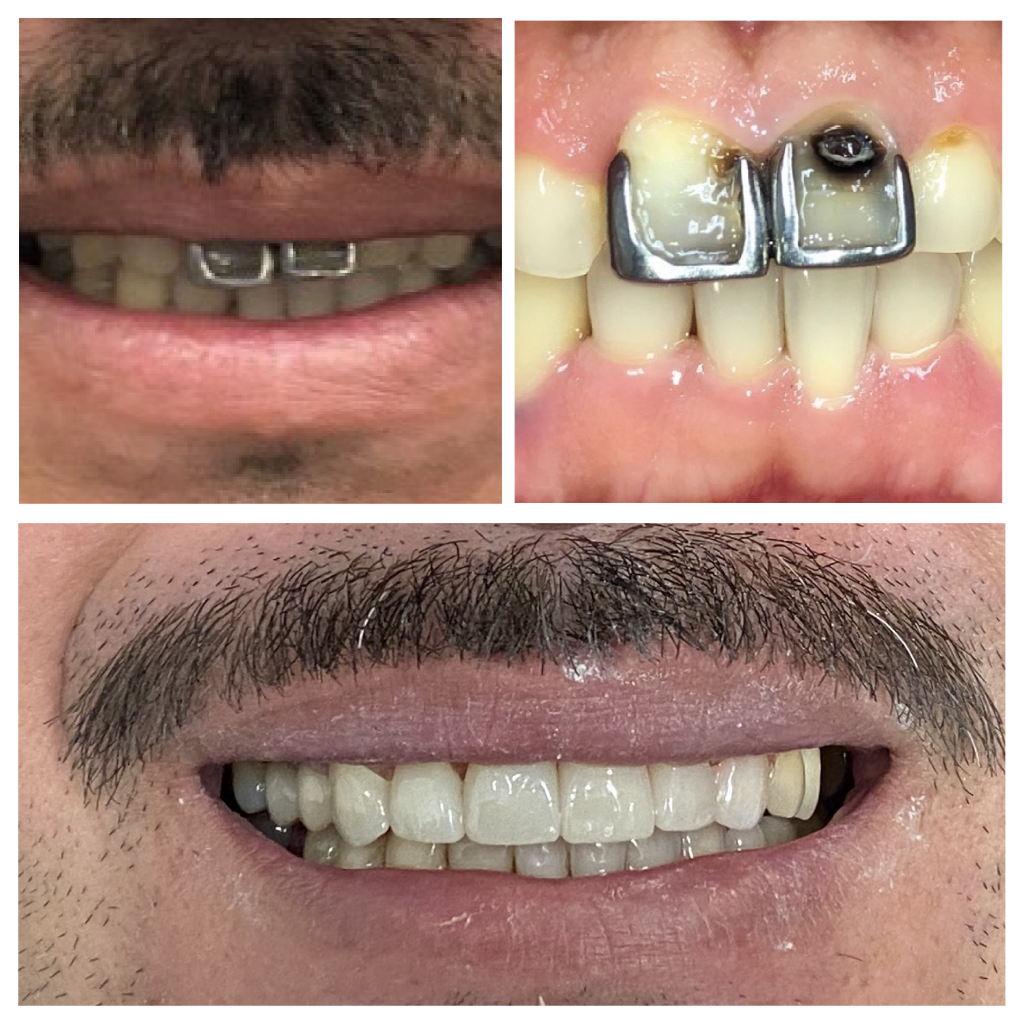 Smilemakeover 01
