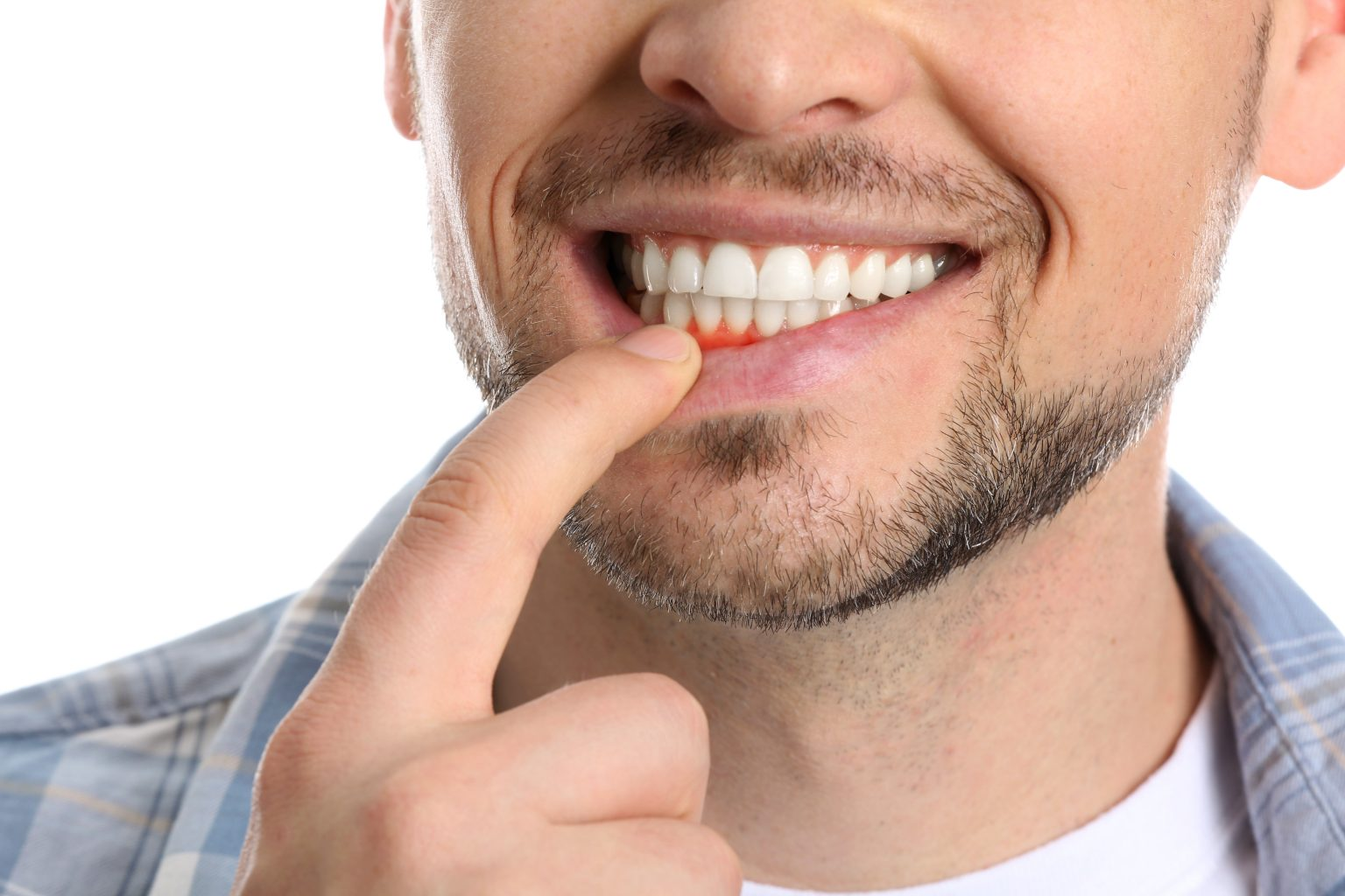 Man With Gum Inflammation On White Background, Closeup